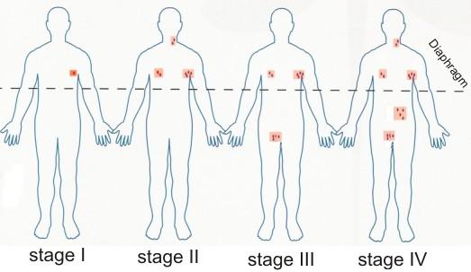 stages_hl